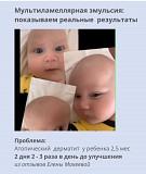 Крем для лечения псориаза, дерматита Нур-Султан